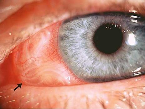 В Индии у пациентки в глазу обнаружили червя длиной семь сантиметров