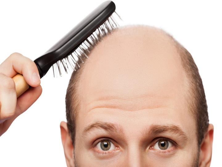 «Молекулярная инструкция» поможет вырастить новые волосы