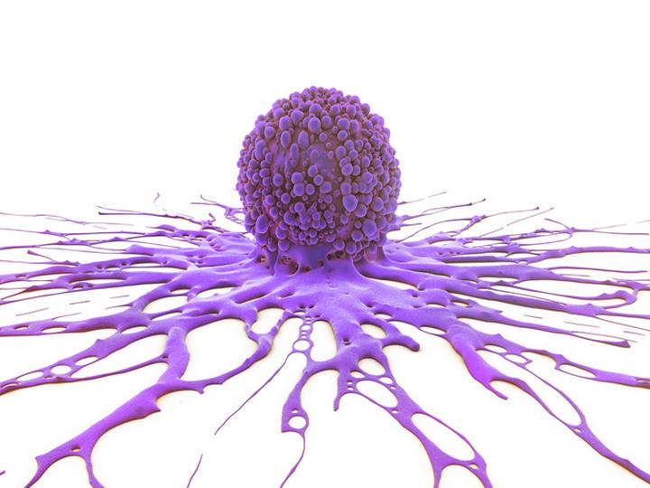 Как жир превращает здоровые клетки в раковые?