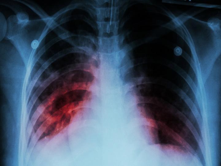 Как туберкулез «взламывает» иммунную систему?
