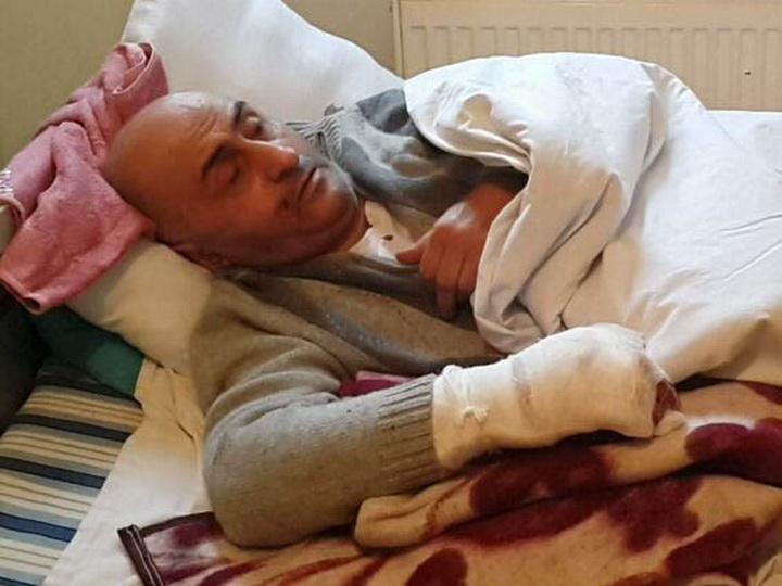 Несчастный случай: Жителю Сумгайыта ампутировали пальцы из-за пиротехники – ФОТО