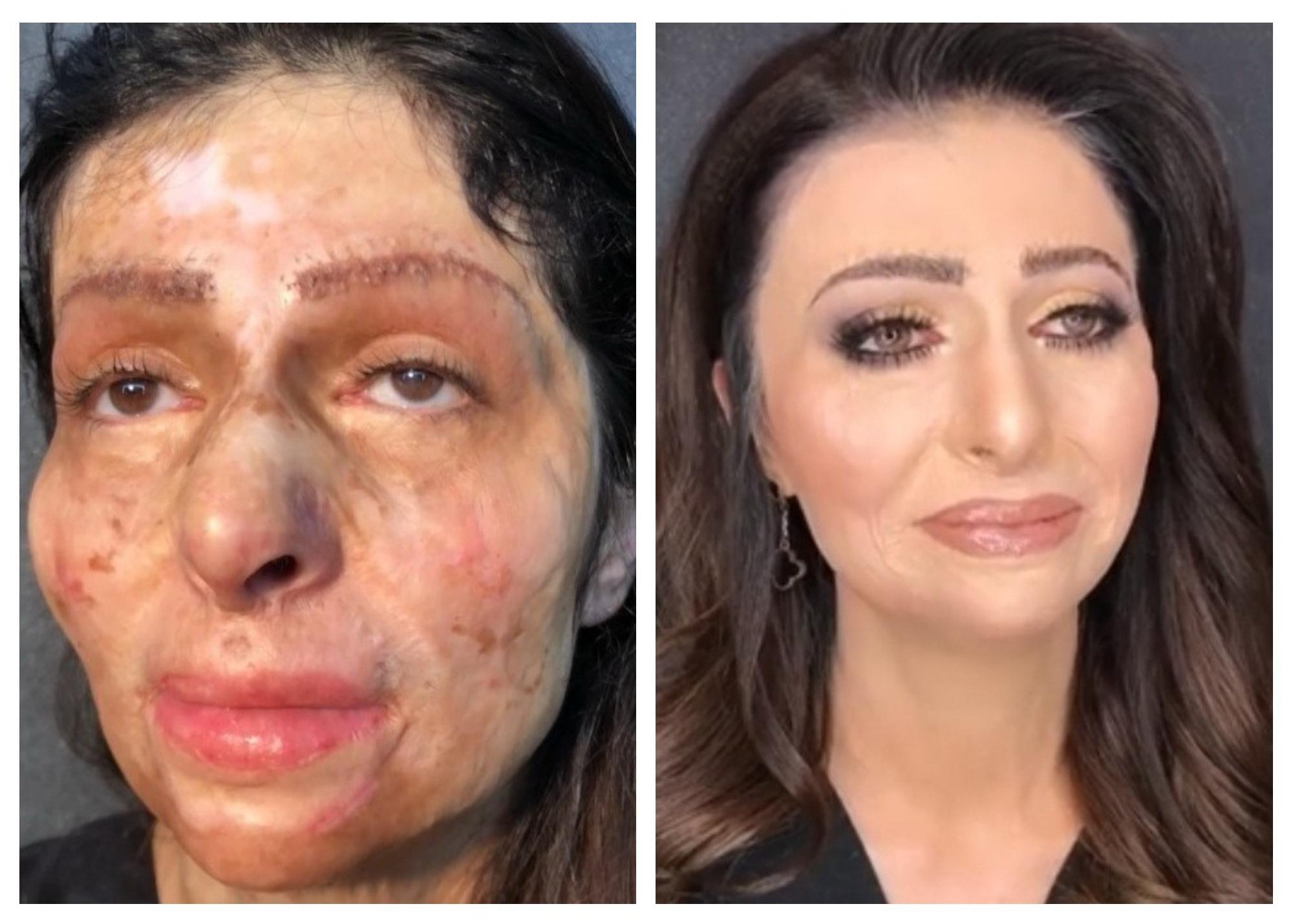 Реакция азербайджанки с обезображенным лицом на первый макияж растрогала пользователей соцсетей – ВИДЕО