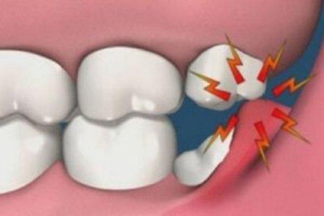 Как удаляют зуб мудрости?