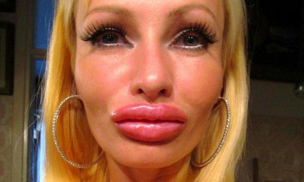 Ростовчанка превратилась в чудовище в погоне за пухлыми губами