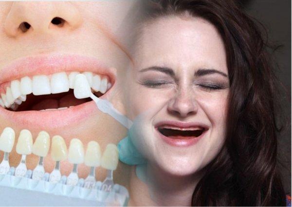 Пеньков полон рот: Любители «голливудской» улыбки остаются без зубов после установки виниров